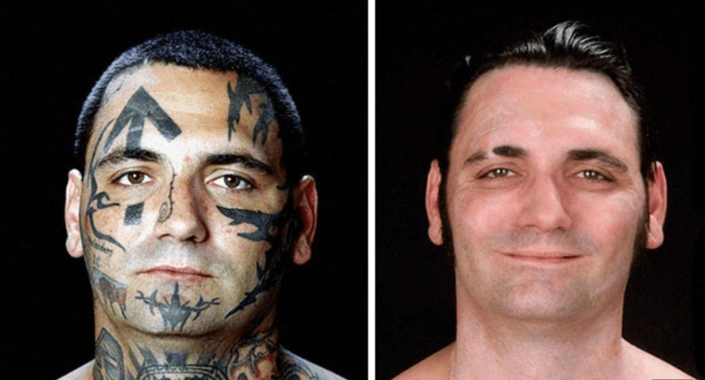 Татуировки на лице исчезают быстрее?
