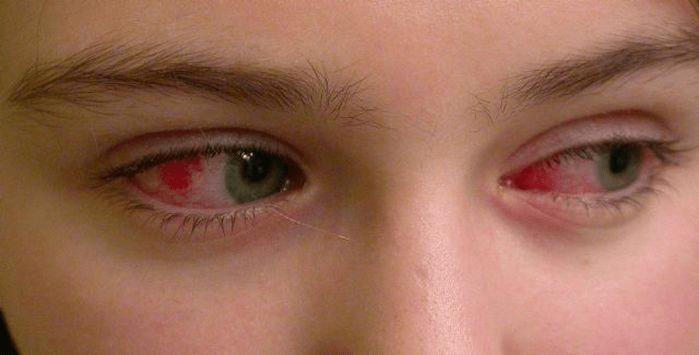 воспалительные заболевания слизистой оболочки глаз