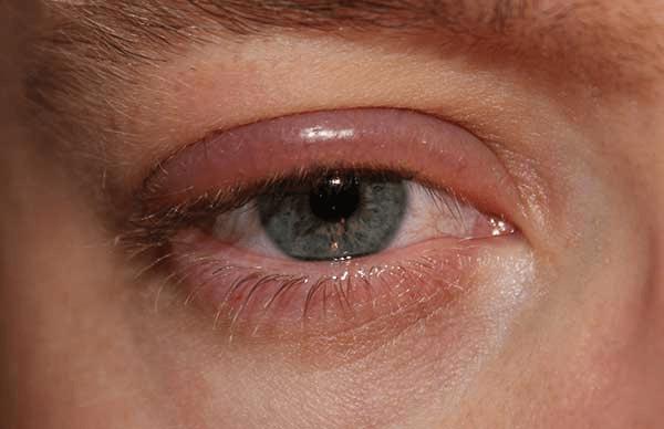 аллергические реакции га глазах