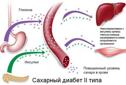 Сахарный диабет - противопоказание